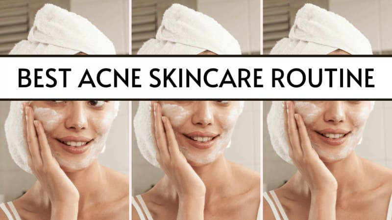 best acne skincare routine