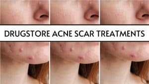 drugstore acne scar products