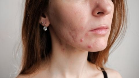 How to get rid of Acne Scars: 5 Legit home remedies that actually work!