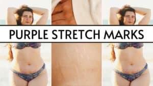 purple stretch marks
