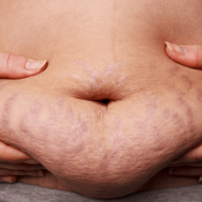 How to Get Rid of Purple Stretch Marks Naturally