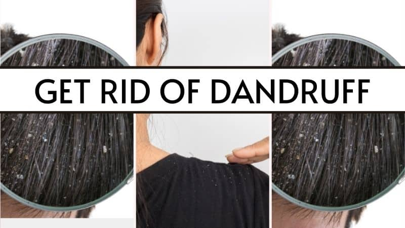 featured image how to get rid of dandruff